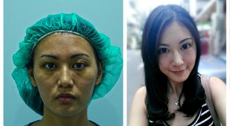 臉部抽脂補脂案例照片