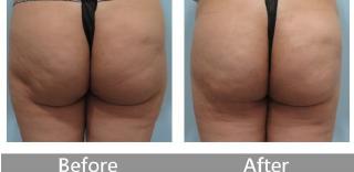 臀部抽脂案例